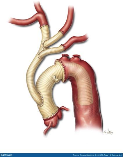Aorta4